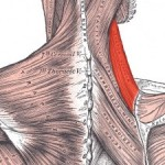 levator-scapulae-about-e1458097934204